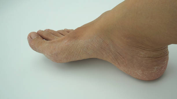 Skin Fissure Ball Of Foot