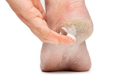 Cracked Skin On Big Toe Remedy