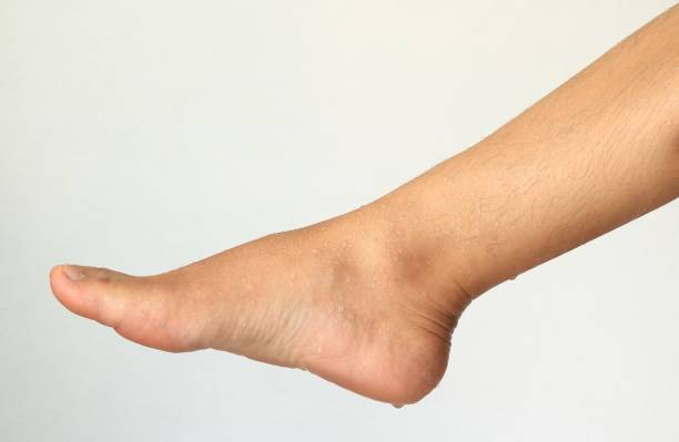 how to stop feet sweating